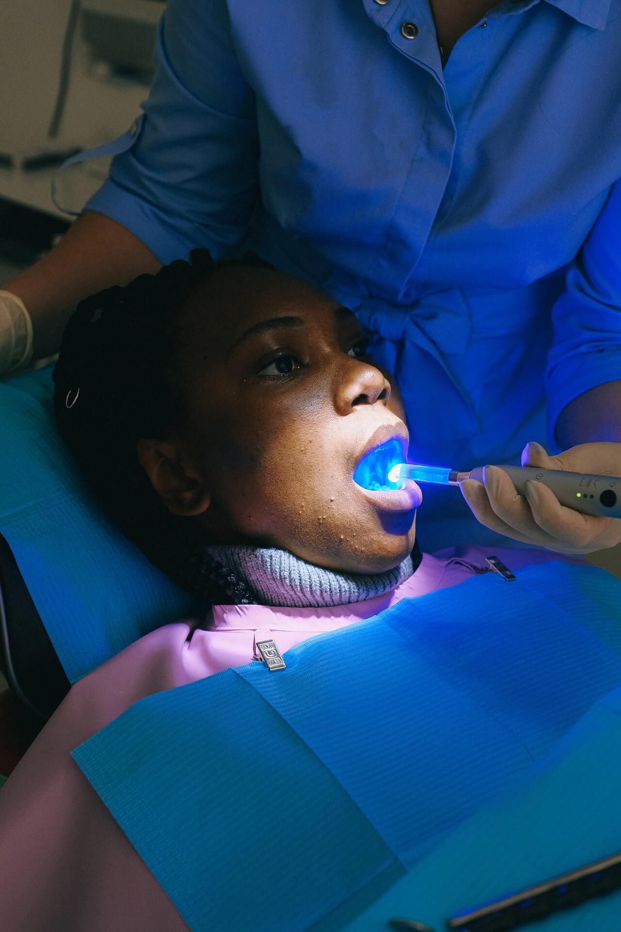 Blanqueamiento dental: en la clínica